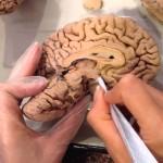 В США проведут эксперимент — оживят мертвый мозг