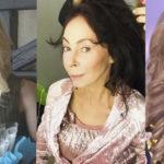 5 российских звезд, которых сложно узнать после пластики